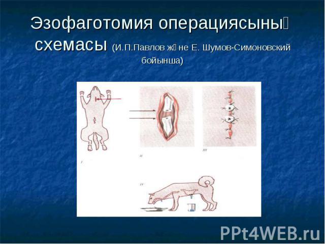 Эзофаготомия