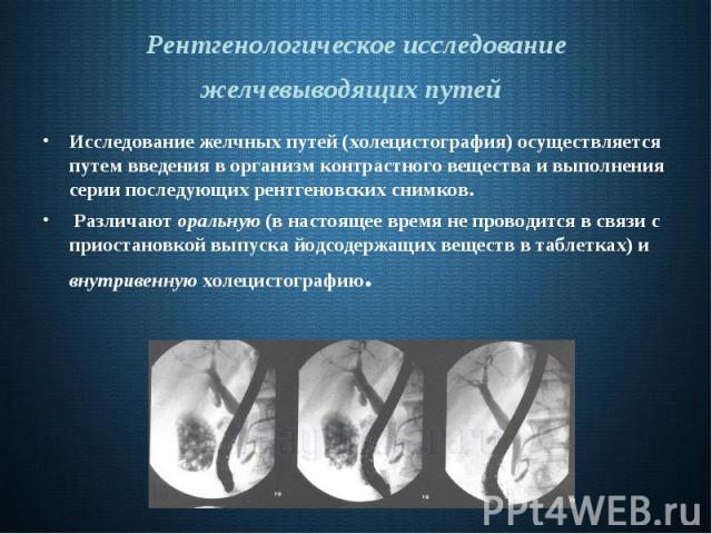 Дискинезия желчевыводящих путей и желчного пузыря у