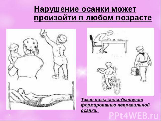 Упражнения для детей i от сколиоза