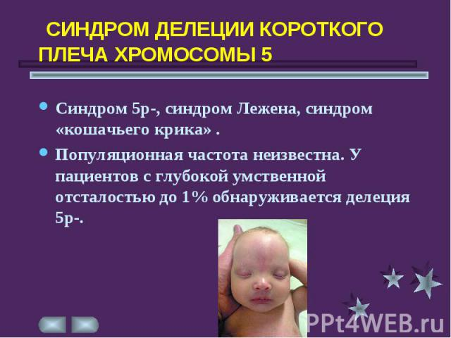 Синдром Кошачьего Крика фото