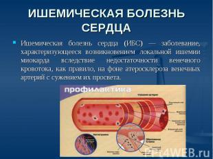 Ишемическая теме по болезнь презентацию
