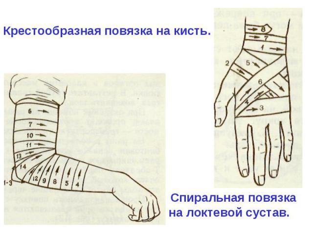Как наложить повязку на тазобедренный сустав 9