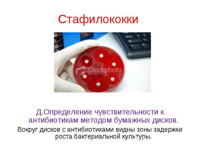 Кк исследований на чувствительность к антибиотикам - тема 8 4 методы определения чувствительности пробирки со средой