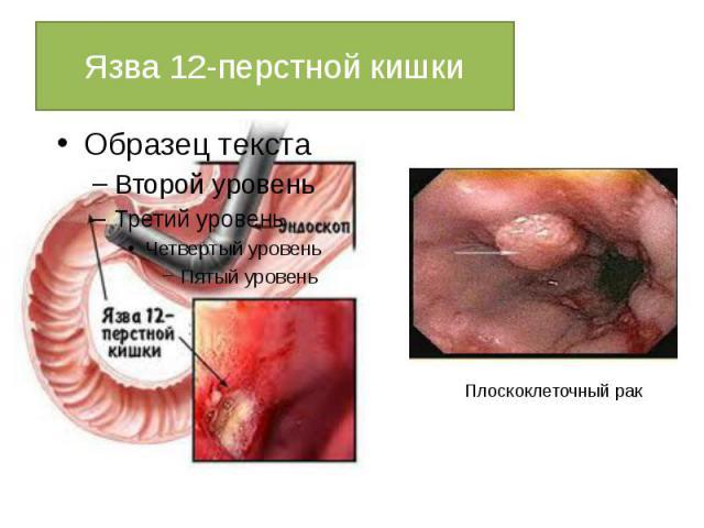 Для лечения язвы двенадцатиперстной кишки