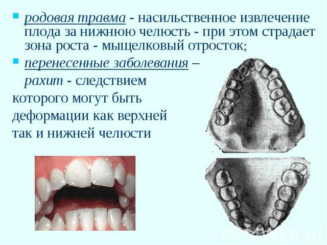 Развития костей и зубов