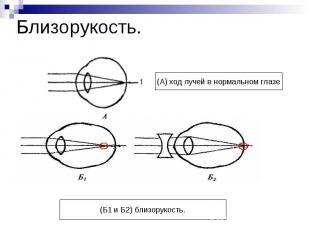 Близорукость. (А) ход лучей в нормальном глазе(Б1 и Б2) близорукость.