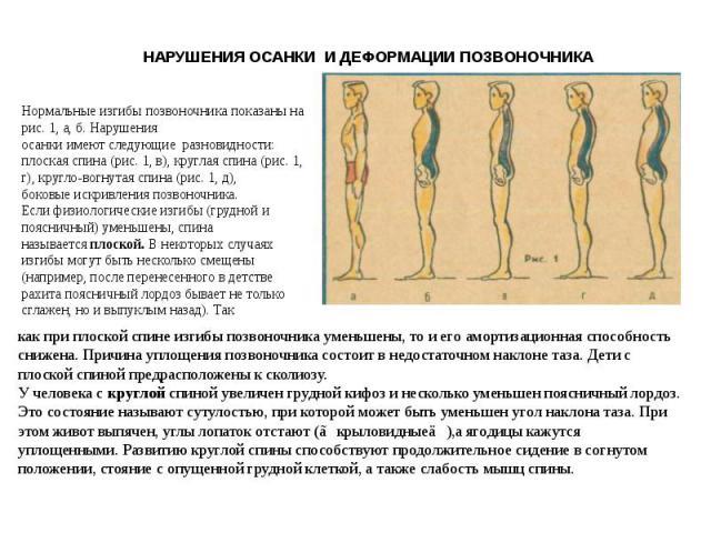 НАРУШЕНИЯ ОСАНКИ И ДЕФОРМАЦИИ ПОЗВОНОЧНИКА Нормальные изгибы позвоночника показаны на рис. 1, а, б. Нарушенияосанки имеют следующие разновидности: плоская спина (рис. 1, в), круглая спина (рис. 1, г), кругло-вогнутая спина (рис. 1, д),боковые искрив…