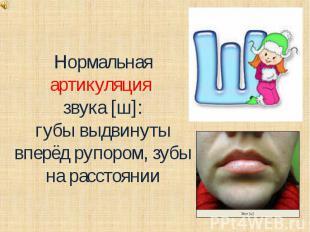 Нормальная артикуляция звука [ш]:губы выдвинуты вперёд рупором, зубы на расстоян