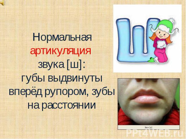 Нормальная артикуляция звука [ш]:губы выдвинуты вперёд рупором, зубы на расстоянии