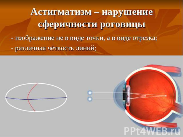 Причины возникновения глазного давления