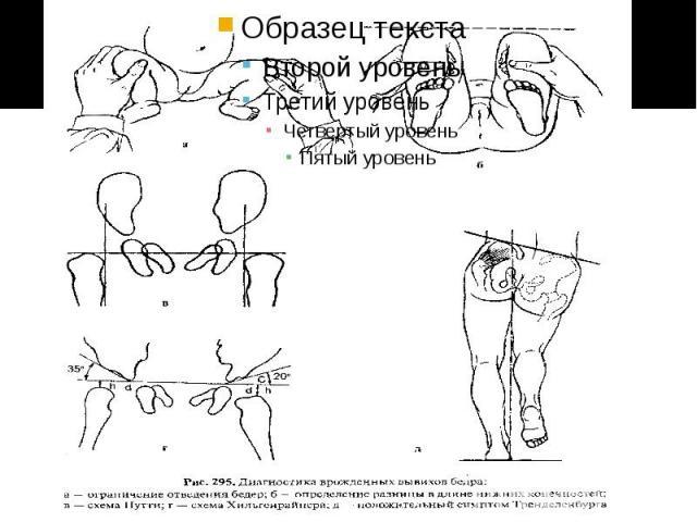 Острая боль в левом боку сзади в пояснице