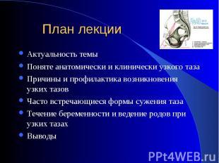 Актуальность темы Актуальность темы Поняте анатомически и клинически узкого таза