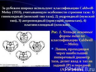Puc. 1. Четыре основные формы таза по классификации Caldwell—Moloy. Puc. 1. Четы