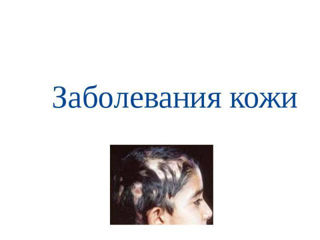 tseni-mazey-ot-gribka-na-nogah