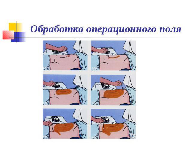 Обработка кожи операционного поля пациенту