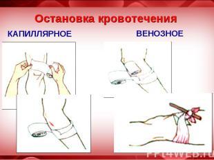 Кровотечения и его остановки с рисунками
