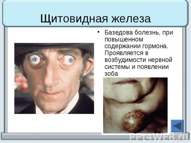 Болезнь Базедова