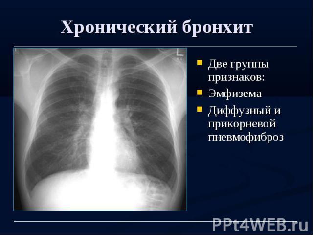Значительное снижение ев (ic), ев/оел (ic/tlc) и диффузионной способности легких (трансфер-фактора)