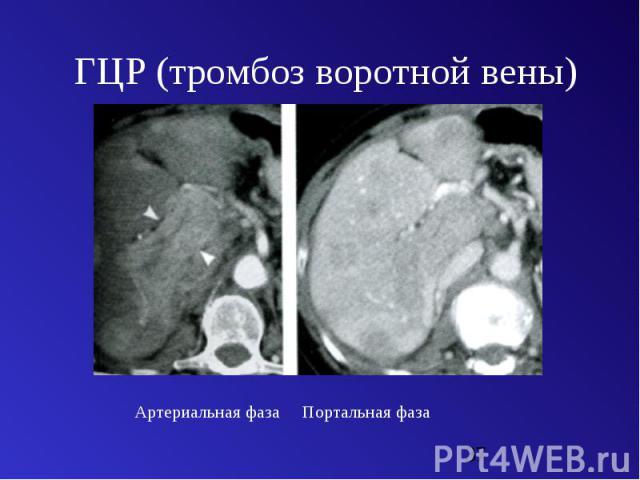 """Презентация на тему """"Багненко С.С. - КТ диагностика заболеваний печени и желчевыводящих путей"""" - скачать презентации по Медицине"""