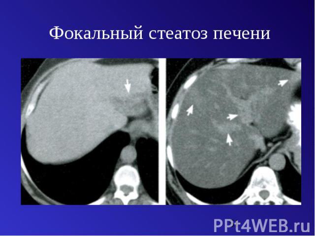 Стеатоз
