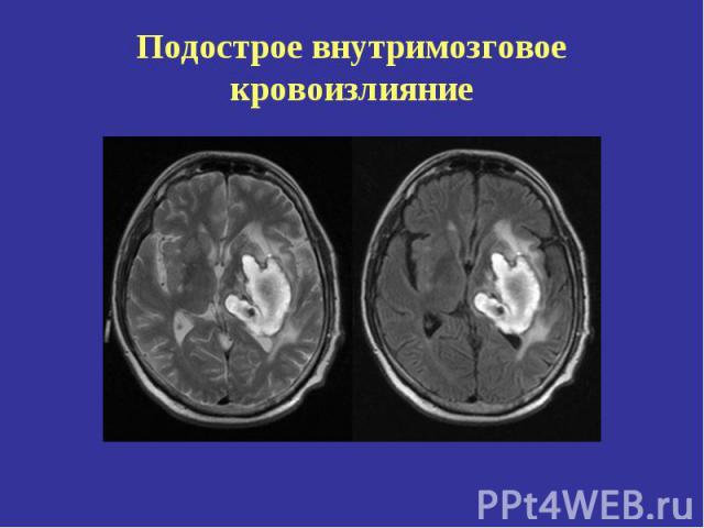 Кровоизлияние Внутримозговое фото