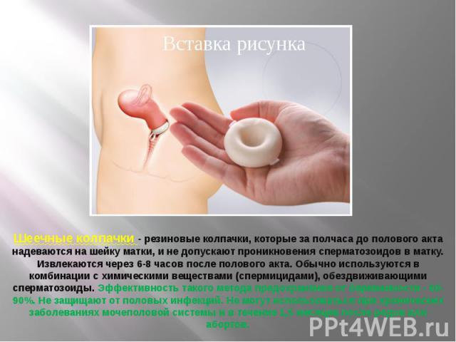 polovoy-akt-v-razreze
