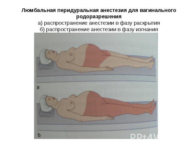 Люмбальная перидуральная анестезия для вагинального родоразрешения а) распространение анестезии в фазу раскрытия б) распространение анестезии в фазу изгнания