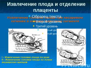 Извлечение плода и отделение плаценты