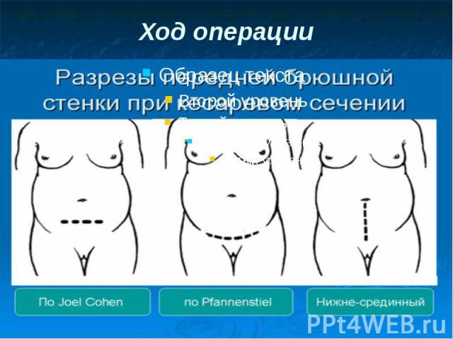 Ход операции