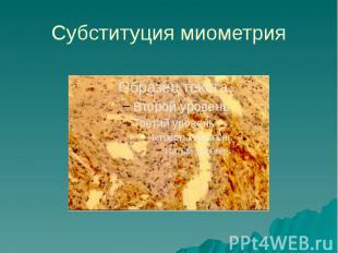 Субституция миометрия