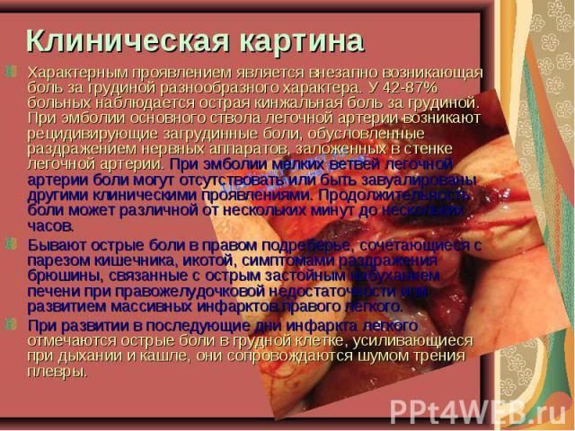 Характерным проявлением является внезапно возникающая боль за грудиной разнообразного характера. У 42-87% больных наблюдается острая кинжальная боль за грудиной. При эмболии основного ствола легочной артерии возникают рецидивирующие загрудинные боли…