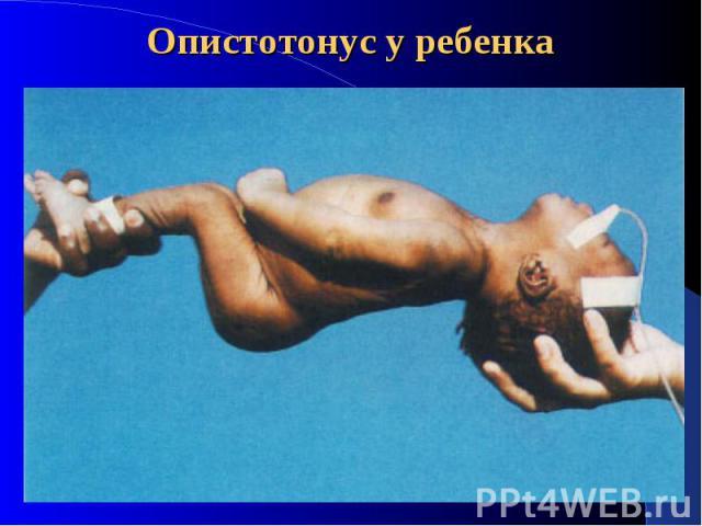 Опистотонус фото