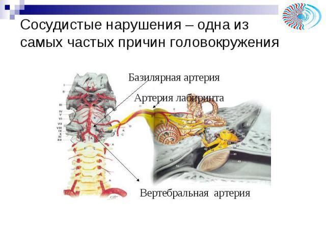 """Презентация на тему """"Головокружение"""" - скачать презентации по Медицине"""