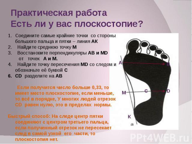 Сколиоз плоскостопия и их профилактика