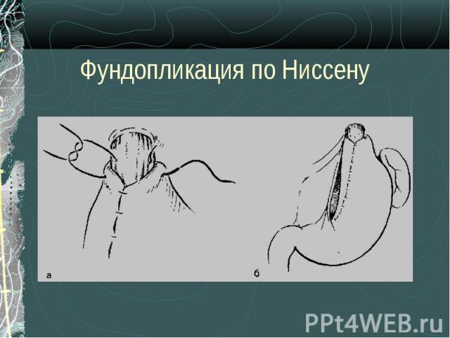 Лечить суставы в украине