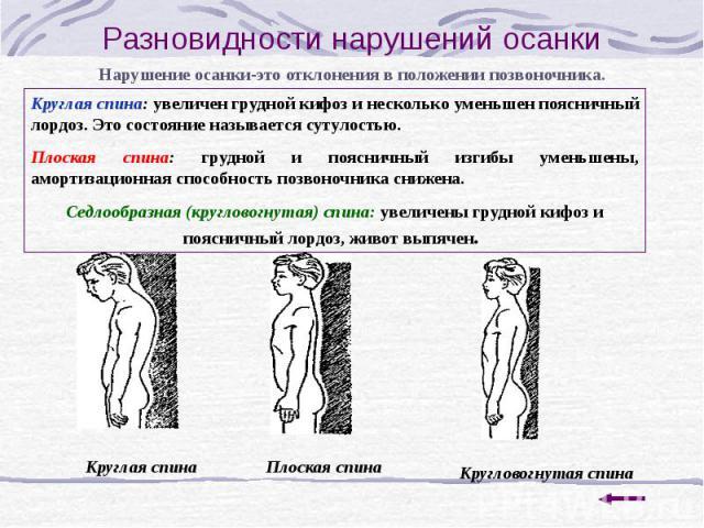 Калининград корректор осанки