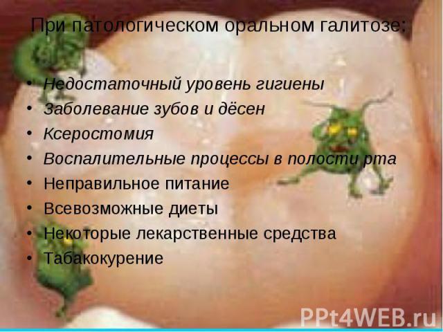 Пасты для лечения галитоза (зловонного запаха изо рта) в Чертково,Голышманово,Мокшане