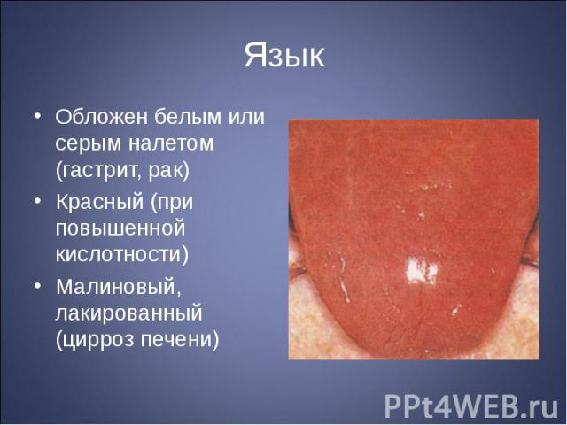 """Презентация на тему """"Обследование больных и симптоматология при болезнях желудочно-кишечного тракта. Расспрос, осмотр больных. П"""