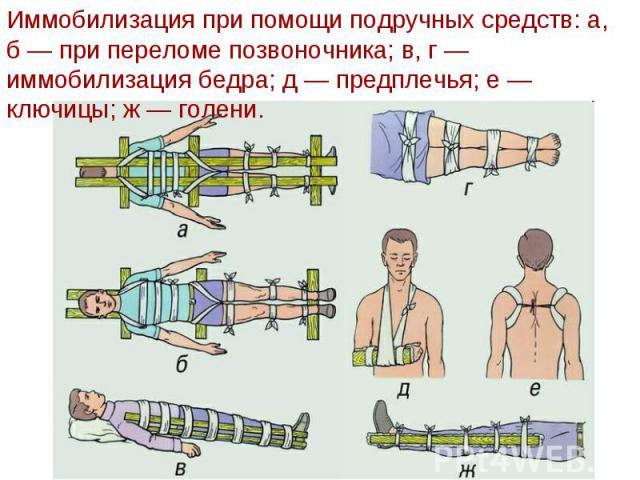 Использование подручных средств для иммобилизации поврежденной конечности