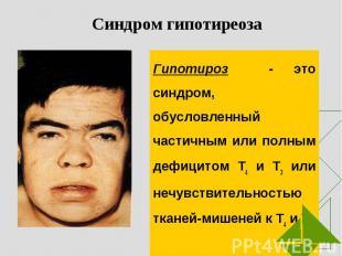 Гипотироз - это синдром, обусловленный частичным или полным дефицитом Т4 и Т3 ил