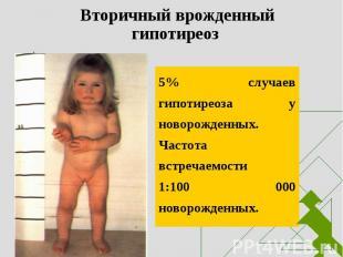 5% случаев гипотиреоза у новорожденных. Частота встречаемости 1:100 000 новорожд