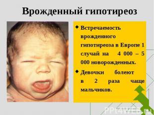 Встречаемость врожденного гипотиреоза в Европе 1 случай на 4 000 – 5 000 новорож