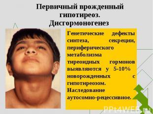Генетические дефекты синтеза, секреции, периферического метаболизма тиреоидных г
