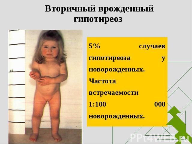 5% случаев гипотиреоза у новорожденных. Частота встречаемости 1:100 000 новорожденных. 5% случаев гипотиреоза у новорожденных. Частота встречаемости 1:100 000 новорожденных.