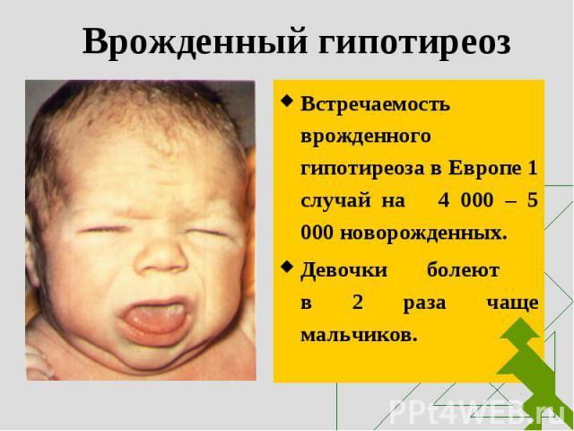 Встречаемость врожденного гипотиреоза в Европе 1 случай на 4 000 – 5 000 новорожденных. Встречаемость врожденного гипотиреоза в Европе 1 случай на 4 000 – 5 000 новорожденных. Девочки болеют в 2 раза чаще мальчиков.