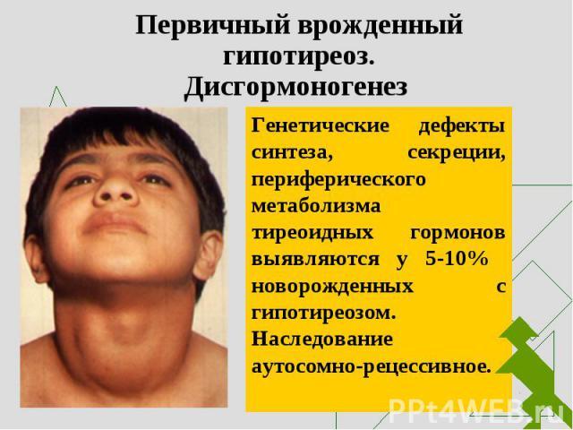 Генетические дефекты синтеза, секреции, периферического метаболизма тиреоидных гормонов выявляются у 5-10% новорожденных с гипотиреозом. Наследование аутосомно-рецессивное. Генетические дефекты синтеза, секреции, периферического метаболизма тиреоидн…