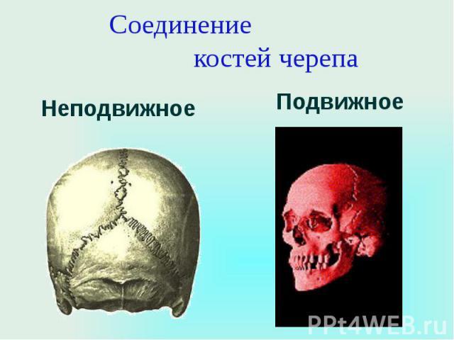 Соединение костей черепа Неподвижное