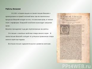 Работы Везалия Работы Везалия В 1539 г. в Базеле вышло из печати письмо Везалия