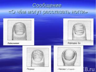 Сообщение «О чём могут рассказать ногти»