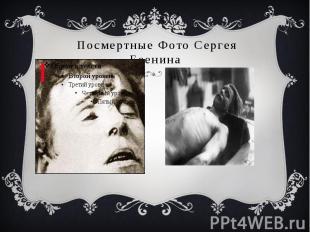 Посмертные Фото Сергея Есенина